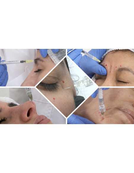 Especialización en Medicina Estética Facial